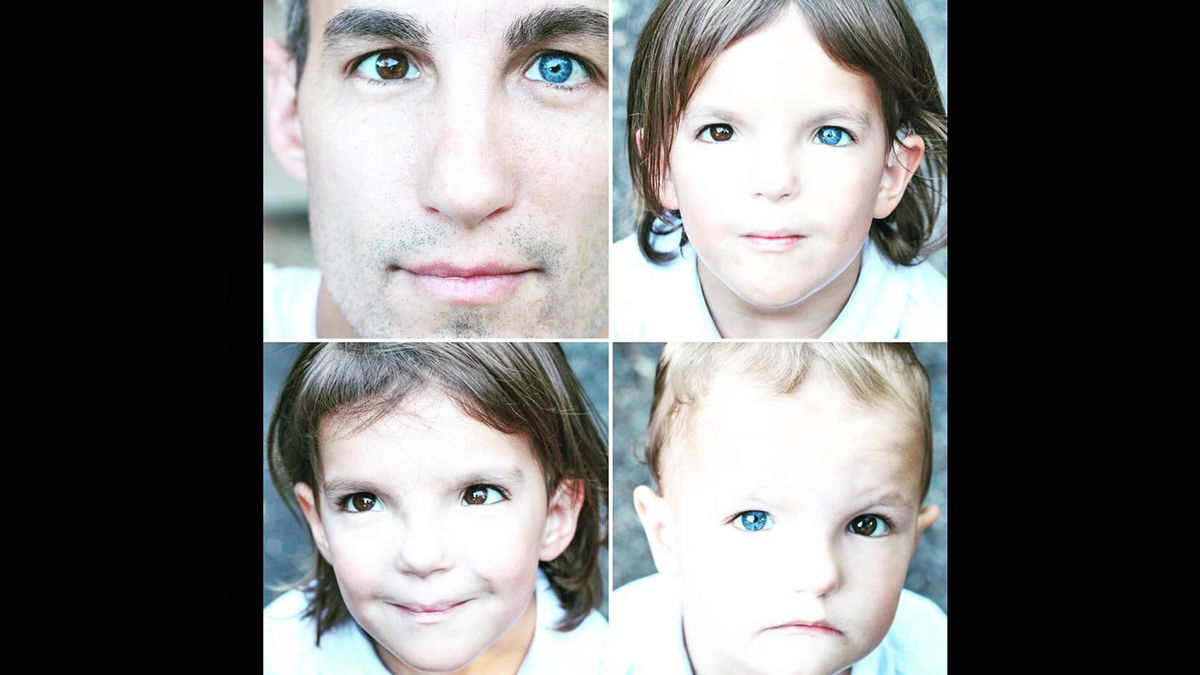 Drew Snyder and his children all have the syndrome.  (Courtesy photo)