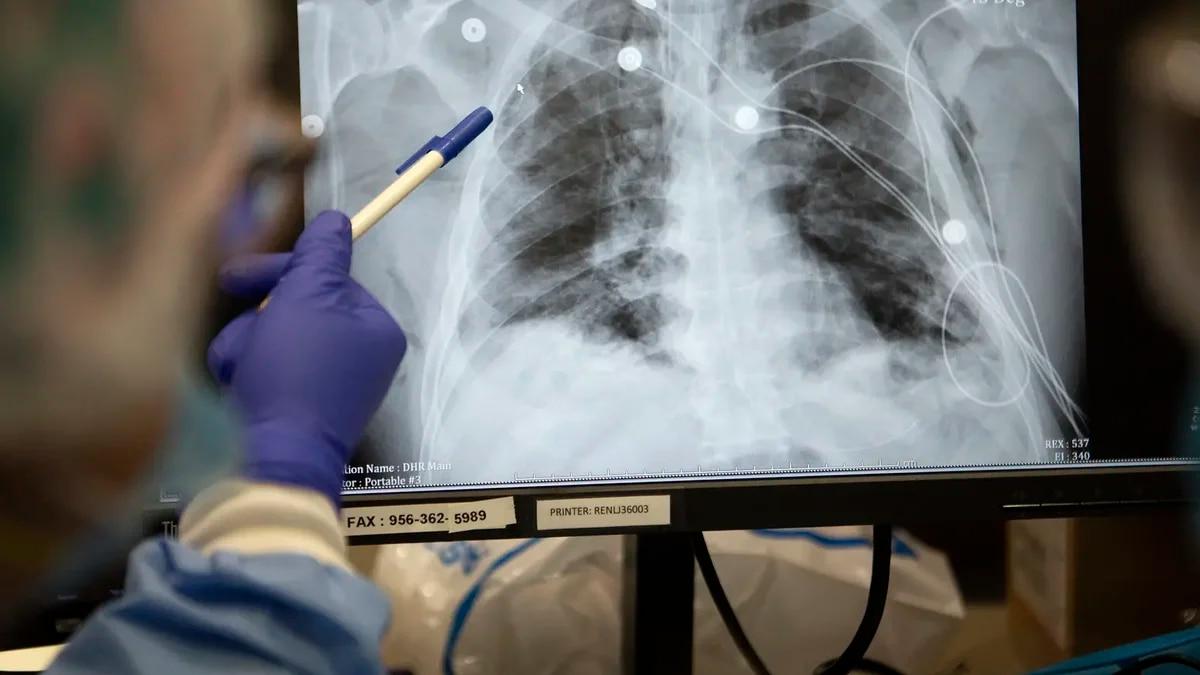 FILE PHOTO:  Nurses look over the X-rays of coronavirus patients