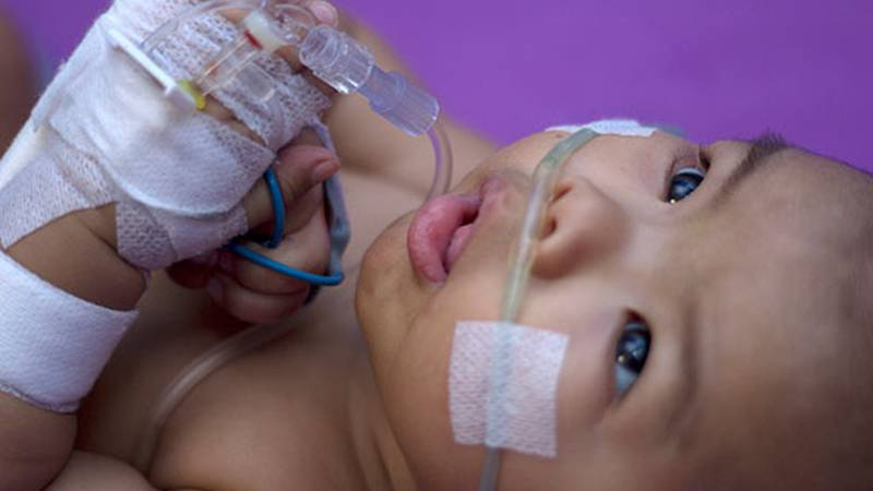Doctors are reporting a spike in RSV cases in Central Texas which may be pandemic-related.